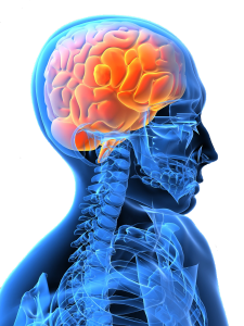 causes, symptoms and treatment of a stroke