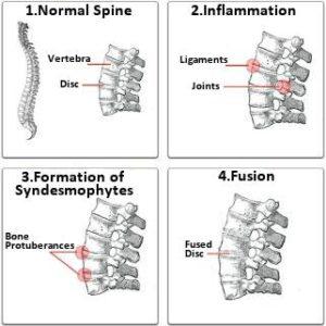 ankylosing spondylitis immage 2