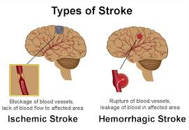 what causes of a stroke: ischemic and hemorrhagic