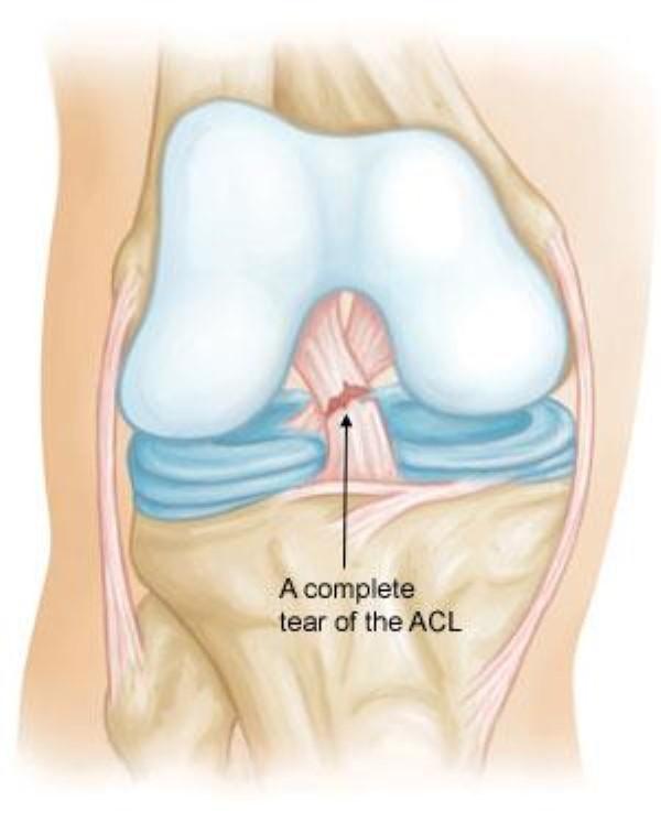 ACL Tear Image gellary